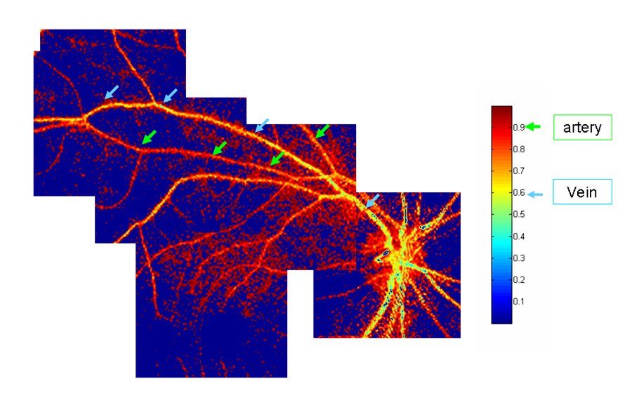 This three-color composite image from the computed tomographic imaging spectrometer shows the oxygenation of the blood in the arteries and veins of a human retina. (Arteries appear red, veins appear yellow.)